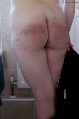 bruised ass