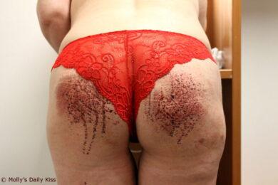 Bleeding bottom