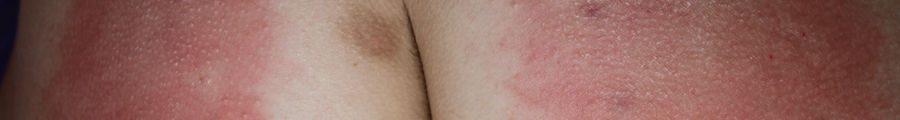 Cane marks