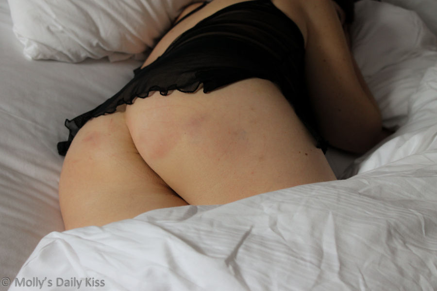 Bruised bottom in white sheets