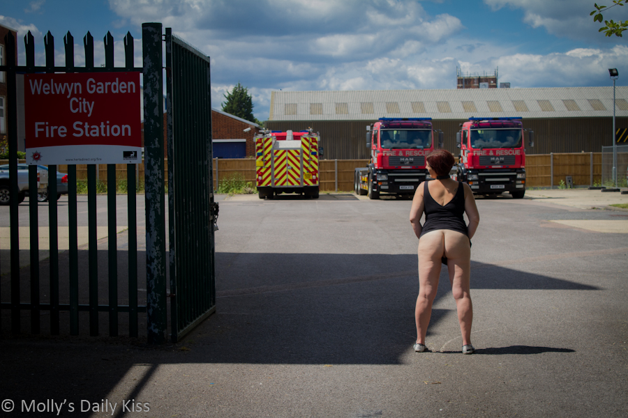 Flash bum at Fire Station