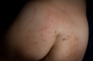 bruises, cuts and knife marks on bare arse