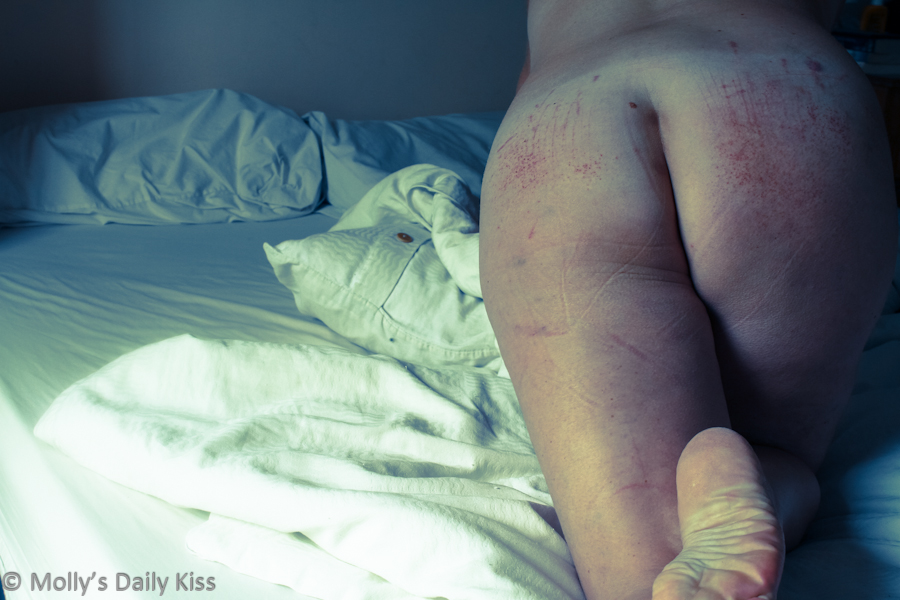 beaten and bruised bum after spanking