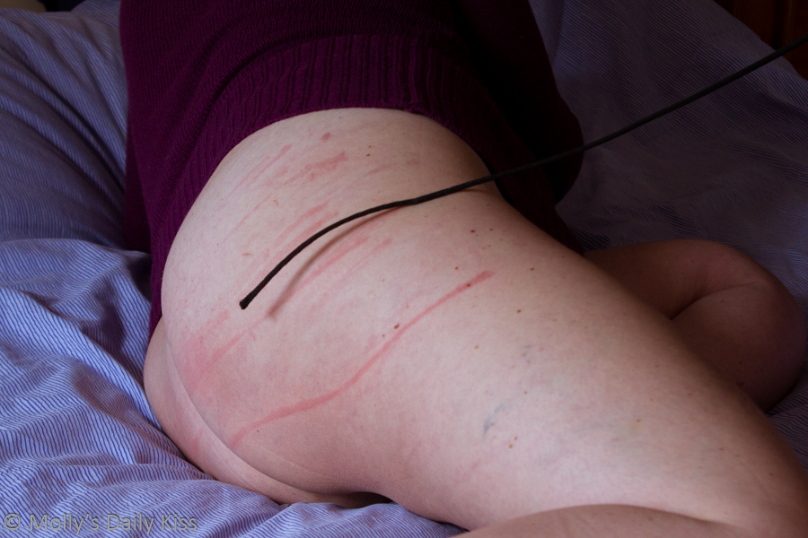 Whip marks on thigh and bum