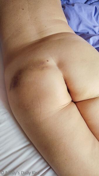 Dark bruises on Molly's bottom