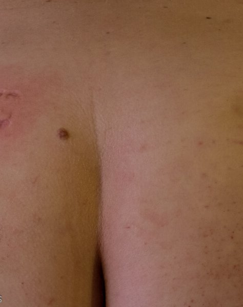 close up of mollys bum with bite mark and scratches and bruises