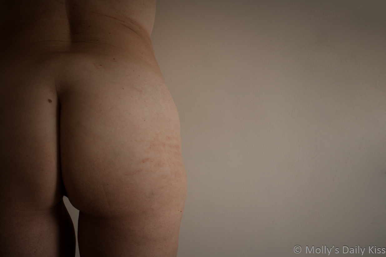 Molly's bum with hand print marks on the edge for post about post sex ache