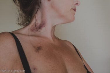 molly showing off black and blue bruises on her neck and chest