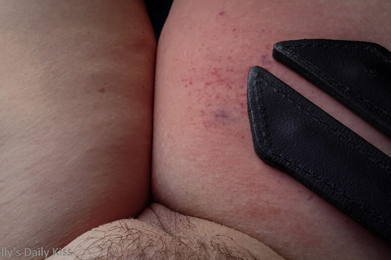 Leather tawse on molly thigh with marks showing for post about pain