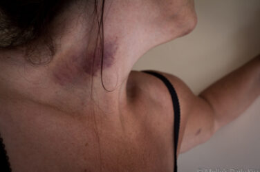 Molly's head tilted back showing large dark neck bruise