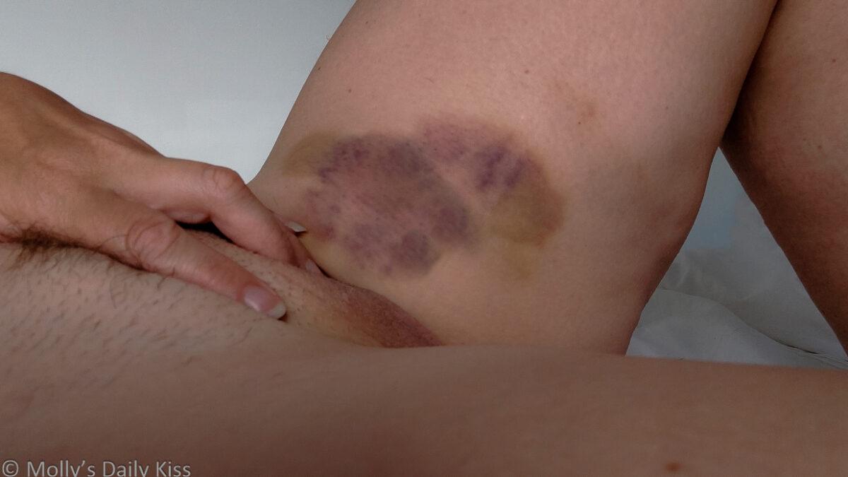 Dak bruises on mollys inner thigh from love bites that are blessings